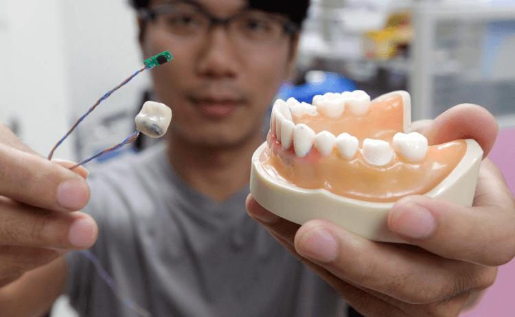 07 - Tooth Sensor