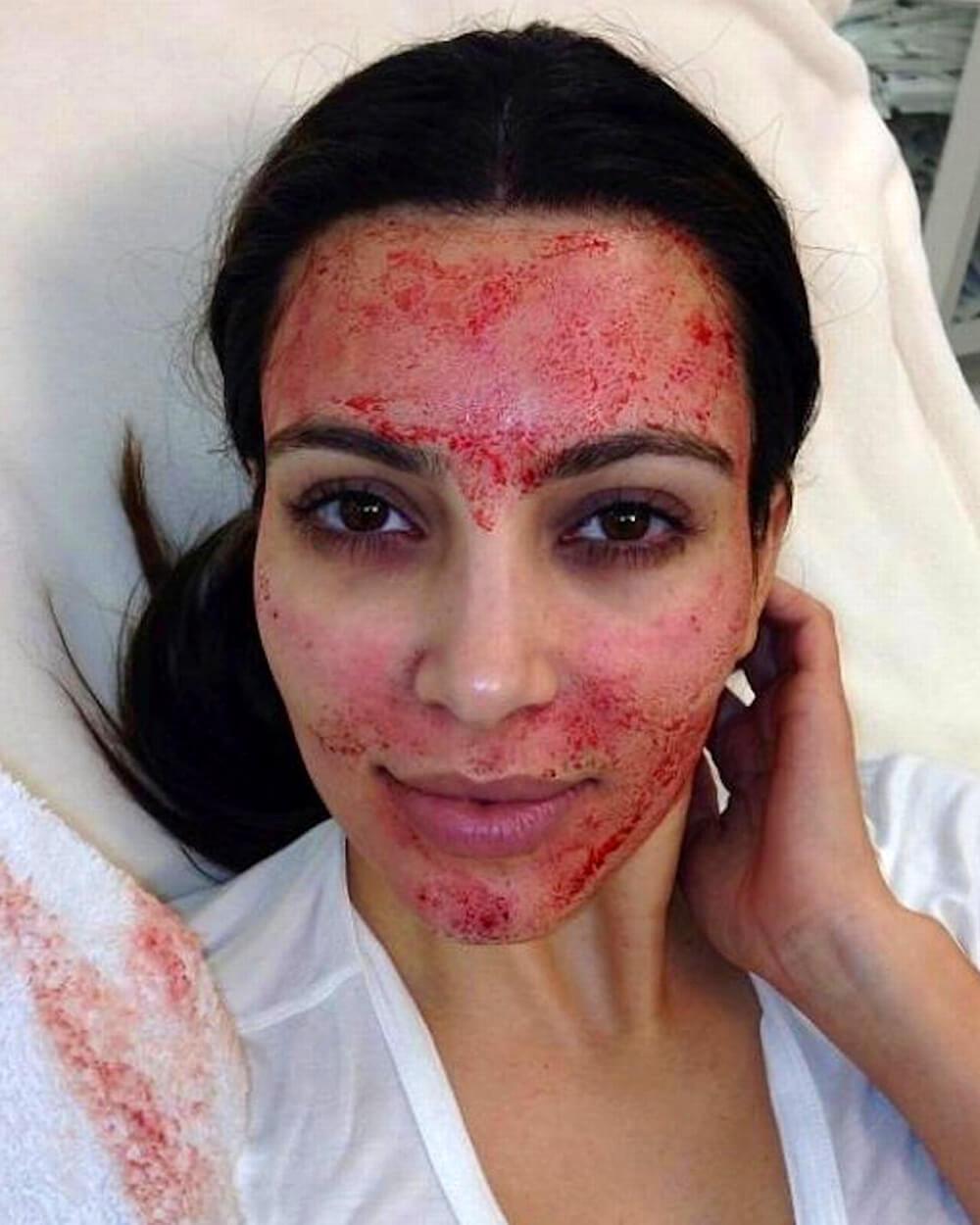 Kim Kardashian Vampire Platelet Prep