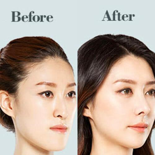 V-shape Jaw in Korean Beauty Standards surgery