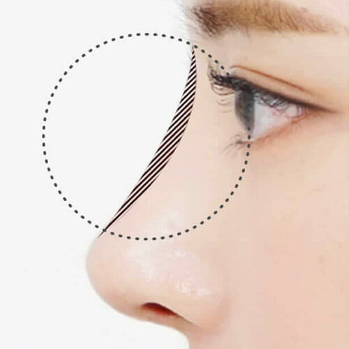 Small pointy nose Korean beauty standards